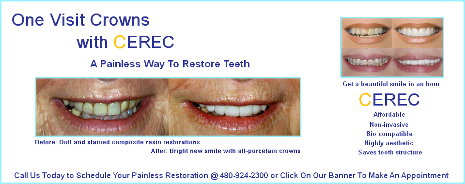 Dental Crowns in Mesa CEREC one hour crowns