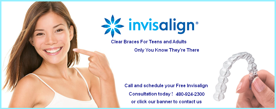 invisalign braces in mesa az